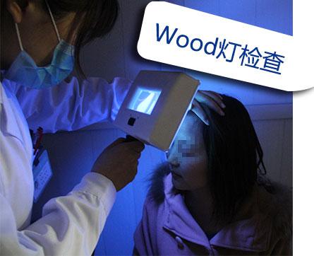 Wood灯检查